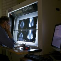 A radiologist checks mammograms, an advanced imaging screening that promotes early detection of breast cancer, at The Elizabeth Center for Cancer Detection in Los Angeles, May. 6, 2010. (Damian Dovarganes/AP)