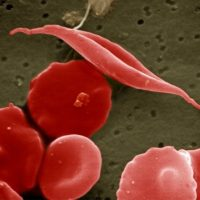 "A ""sickled"" cell among normal red blood cells. (Wikimedia Commons)"