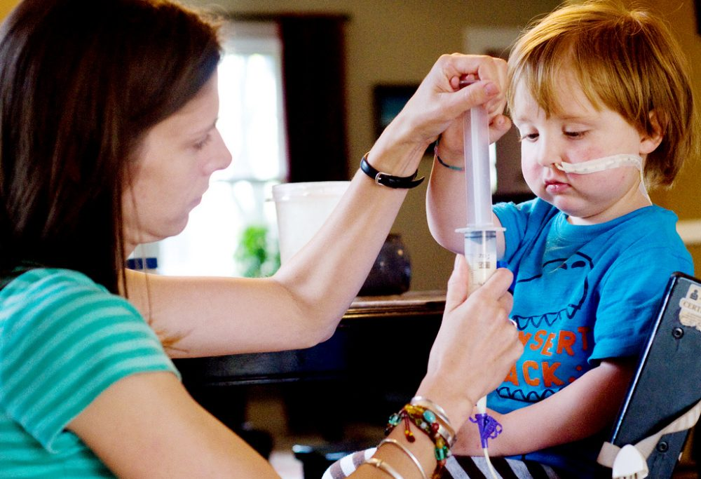 Charlie Waller, 3, helps his mother, Abigail, push a dietary supplement through a feeding tube that runs across his face and into his stomach. (Matt Radick/Flickr)