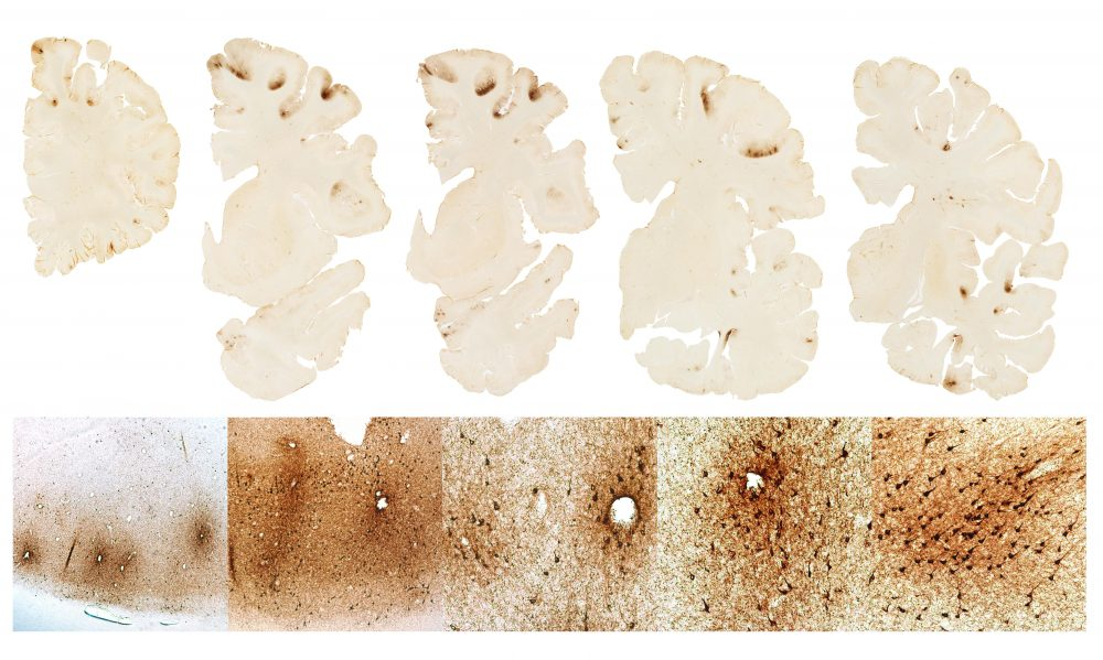 This graphic, BU researchers say, shows the classic features of CTE in the brain of Hernandez. (Courtesy BU CTE Center)