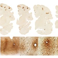 This graphic, BU researchers say, shows the classic features of CTE in the brain of. Hernandez. (Courtesy BU CTE Center)