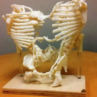 A surgical model, based on CT scan images and produced by 3D printing, showing the skeletal structures and arterial connections of conjoined twins separated at Mass General Hospital for Children (Courtesy of The New England Journal of Medicine)
