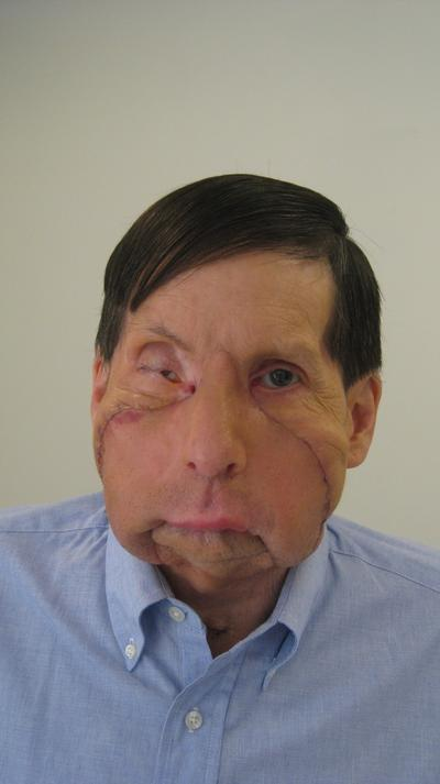 James Maki is the first person in New England to receive a partial face transplant. (Photo courtesy of Brigham And Women's Hospital)