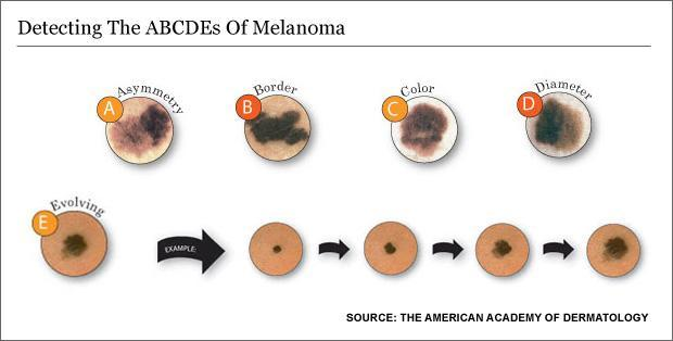 A Cancer Visible To The Naked Eye But Doctors Aren T Looking Wbur News