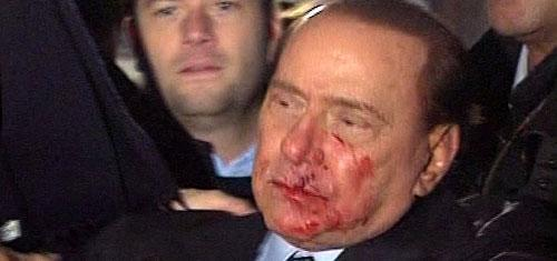 This video image made available by RAI TG3 shows Italian Premier Silvio Berlusconi after an attacker hurled a statuette at him, striking the leader in the face at the end of a rally in Milan, Italy on Sunday Dec. 13, 2009. (AP)