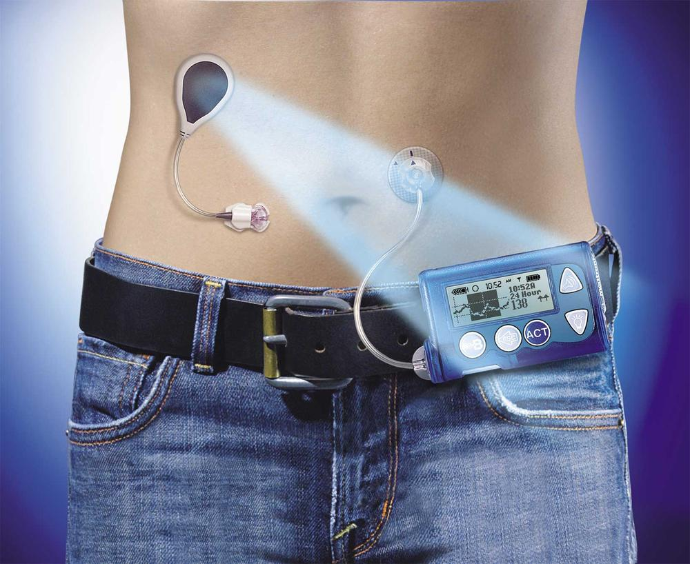 An image of an artificial pancreas, envisioned by the Juvenile Diabetes Research Foundation.