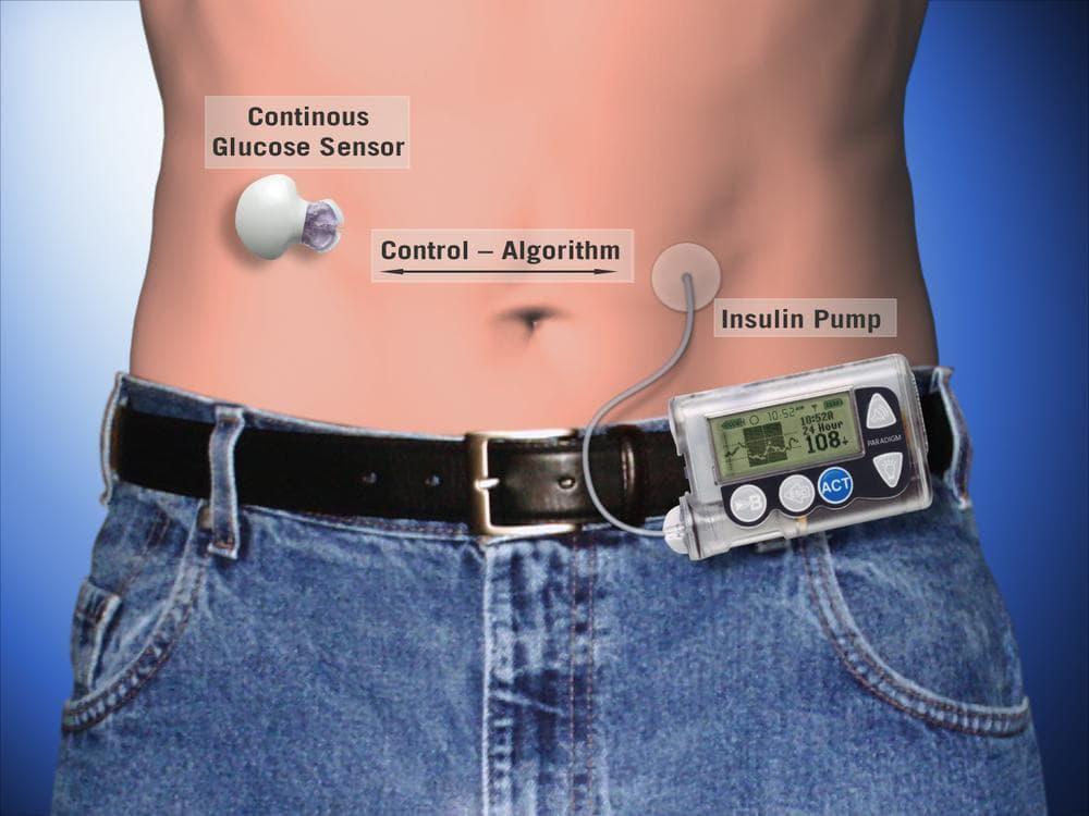 (Juvenile Diabetes Research Foundation)