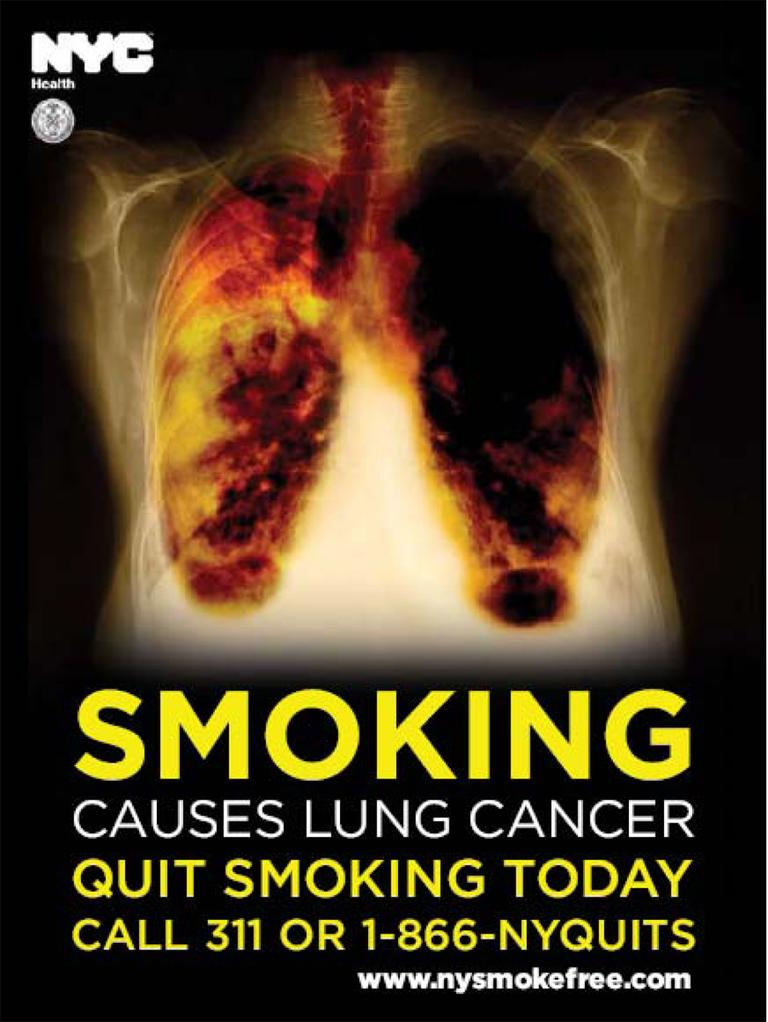 State health officials want graphic warnings such as this one, which shows diseased lungs, posted near store tobacco displays.