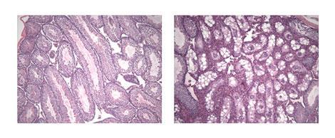 Rejuvenation of testicular tissue after telomerase activation. Left, TERT-ER mouse, not induced; right, TERT-ER mouse, induced. (Dana-Farber Cancer Institute)