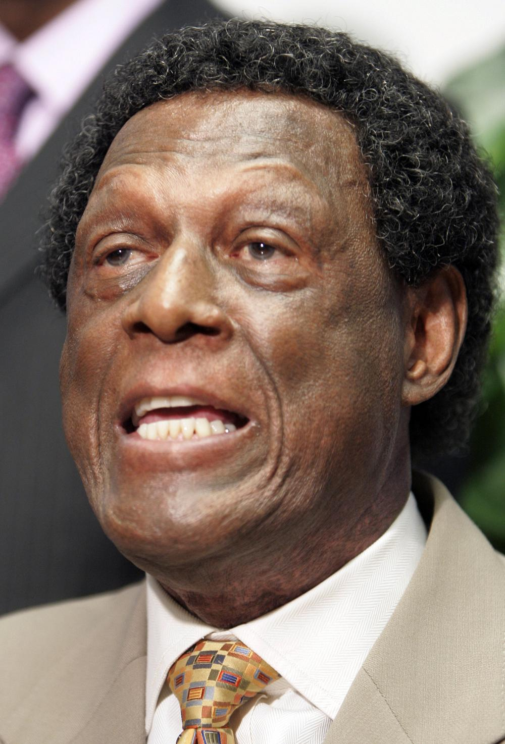 """NBA Hall of Famer and former Los Angeles Clippers executive Elgin Baylor is suing the team saying he was wrongfully terminated in 2008 """"on account of his age and his race"""" and that he was grossly underpaid. (AP)"""