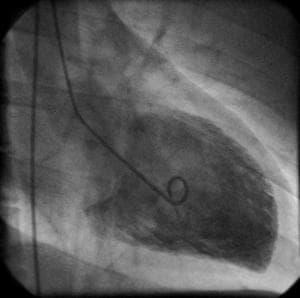 Image of a cardiac catheterization from a Berlin hospital