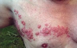 Ouch. A case of shingles, also known as herpes zoster