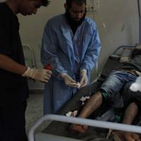A wounded Libyan rebel fighter is attended by medical staff at the main hospital of Ajdabiya, Libya. (AP)
