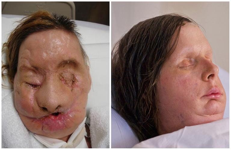 Undated photos provided by Brigham and Women's Hospital show chimpanzee attack victim Charla Nash after the attack, left, and post-face transplant surgery. (AP)