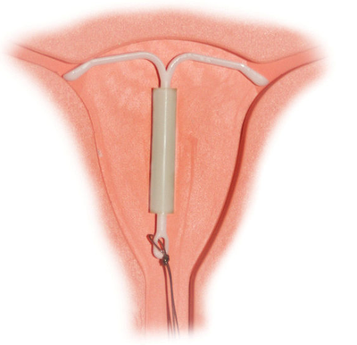 "The ""Mirena"" hormone-releasing IUD"