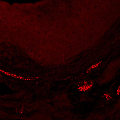 The mouse vagina: in red are nerve fibers in a state of hypersensitivity after exposure to several yeast infections.