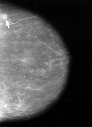 mammogram beyond 50