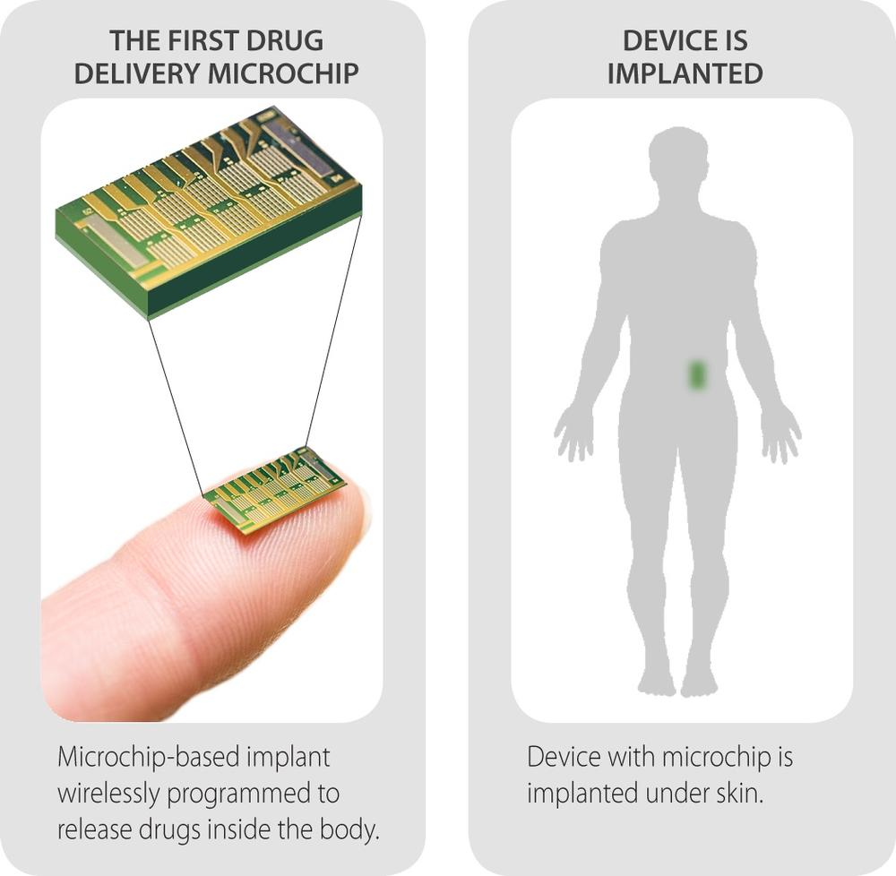 An image of the new microchip and where it would be implanted