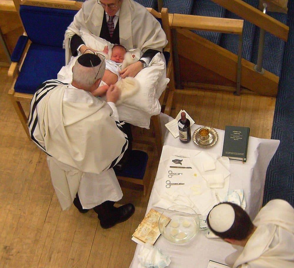 Preparing for a ritual circumcision (Cheskel Dovid/Wikimedia Commons)