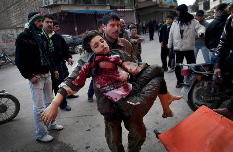 A man carries a boy who was severely wounded during heavy fighting between Syrian rebels and government forces in Idlib, north Syria. Sunday, March 11, 2012. (AP Photo/Rodrigo Abd)