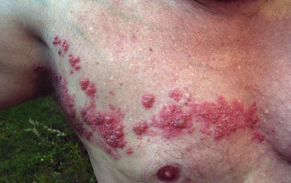 A case of shingles (Wikimedia Commons)