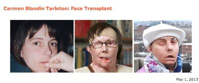 Photos from Brigham and Women's Hospital of its latest face transplant recipient, Carmen Blandin Tarleton. (Courtesy BWH)