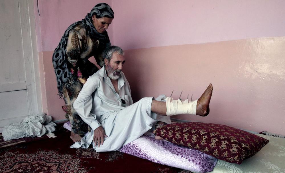 Abdul Jamil, 55, a suicide attack victim who suffers from injuries on his right leg and lost his left eye, is helped by his wife at his home, in Kabul, Afghanistan, Wednesday, July 31, 2013. (Rahmat Gul/AP)
