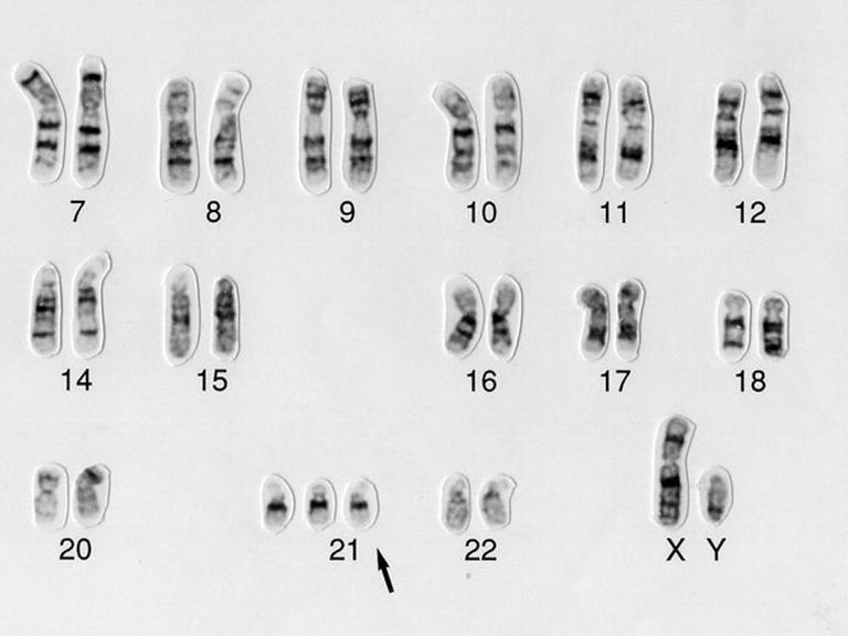 Down syndrome human karyotype (Wessex Reg. Genetics Centre)