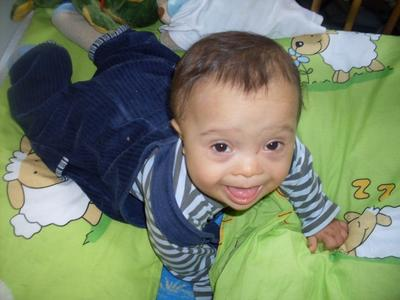 A 1-year-old with Down syndrome (Wikimedia Commons)