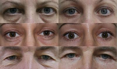 Work by a Saint Petersburg cosmetic surgeon on Wikimedia Commons
