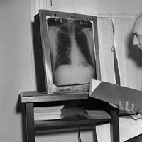 Dr. T. Royle Dawber, was the director of the Framingham Heart Study, from 1949-1966. He checks an X-Ray in his office on April 7, 1952. (Frank C. Curtin/AP)