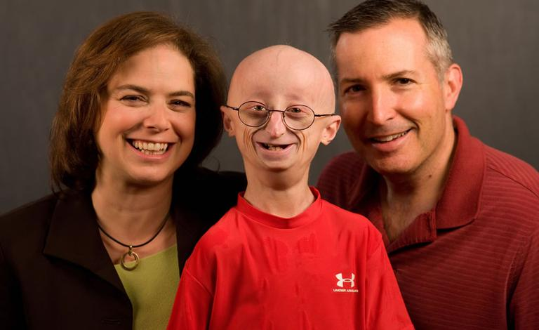 Sam with his parents Leslie Gordon and Scott Berns. When Sam was diagnosed, Gordon immersed herself in studying progeria's cause and the search for a cure. (Courtesy Fine Films)