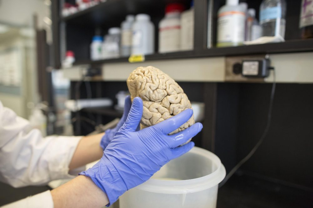 A researcher holds a human brain in a laboratory at Northwestern University's cognitive neurology and Alzheimer's disease center in Chicago. (Scott Eisen/AP)