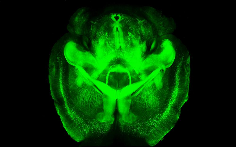 This is a mouse brain that scientists made transparent using a new technique called CLARITY. First, they infused the brain with a gel that bound to the brain's proteins and held them in place. Then, the scientists flushed out all the opaque fatty tissue from the brains, leaving them structurally intact but transparent. Using this technique, scientists can study the three-dimensional structure of brains without having to cut them apart. (Courtesy of Karl Deisseroth/Stanford University)