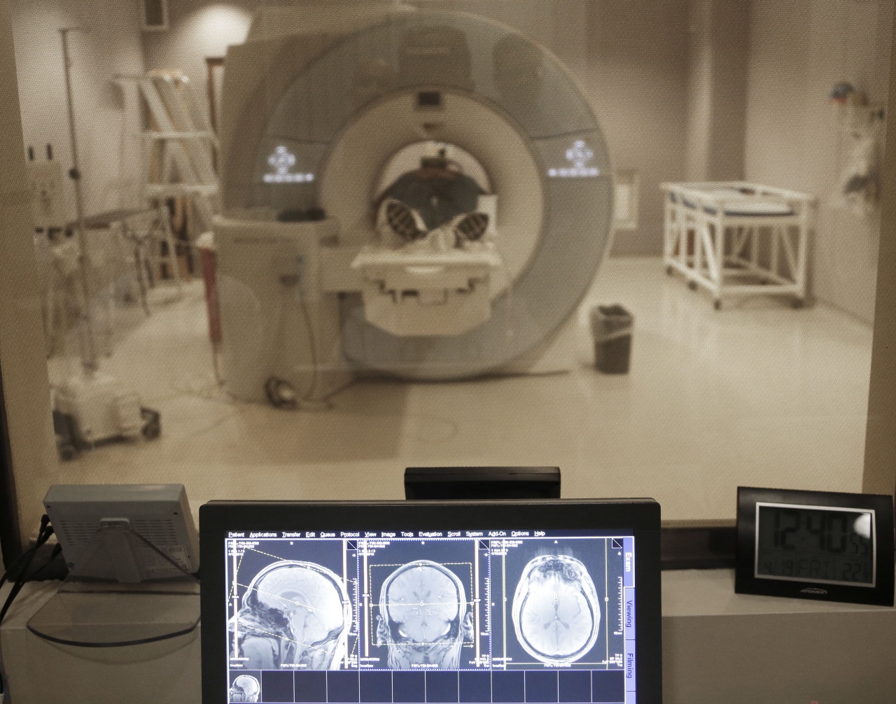 Dr. Annie Brewster reflects on her changing MRI scans, which are changing as a result of her multiple sclerosis diagnosis. A controversial tax on medical devices like an MRI machine will return in 2018 unless lawmakers change something.  (Paul Sancya/AP/File)