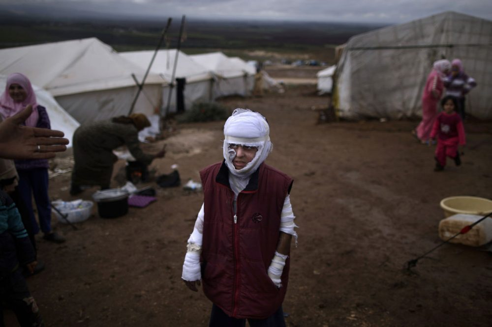 In this Dec. 11, 2012 photo, Abdullah Ahmed, 10, who suffered burns in a Syrian government airstrike and fled his home with his family, stands outside their tent at a camp for displaced Syrians in the village of Atmeh, Syria. (Muhammed Muheisen/AP)
