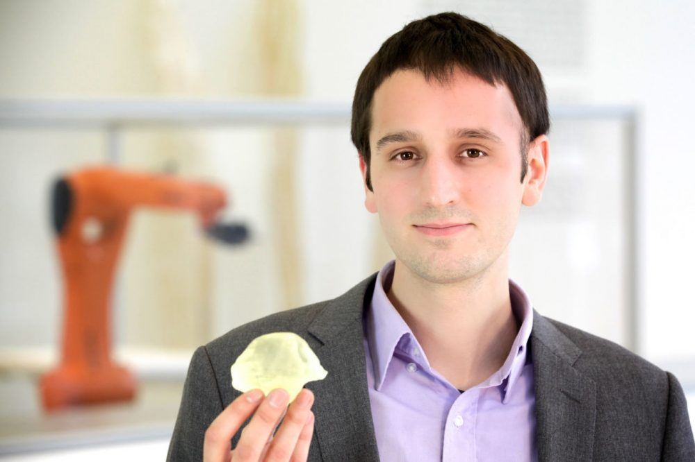 Steven Keating has 3-D printed versions of his tumor, that took up 10 percent of his brain. (Courtesy Steven Keating, photo by Paula Aguilera & Jonathan Williams)