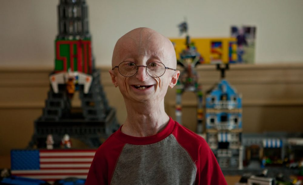 Sam Berns, who died in 2014 at age 17 from complications of the rare genetic disease progeria, was known for his philosophy for living a happy life and how he didn't let the obstacles presented by his disease stop him from achieving his dreams. (Courtesy Fine Films)
