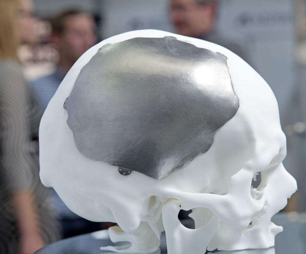 "According to Dr. Michael Misialek, ""Even though the holy grail of 3D-printing human organs remains years away, it is a future that now appears to be within reach."" (Jens Meyer/AP)"