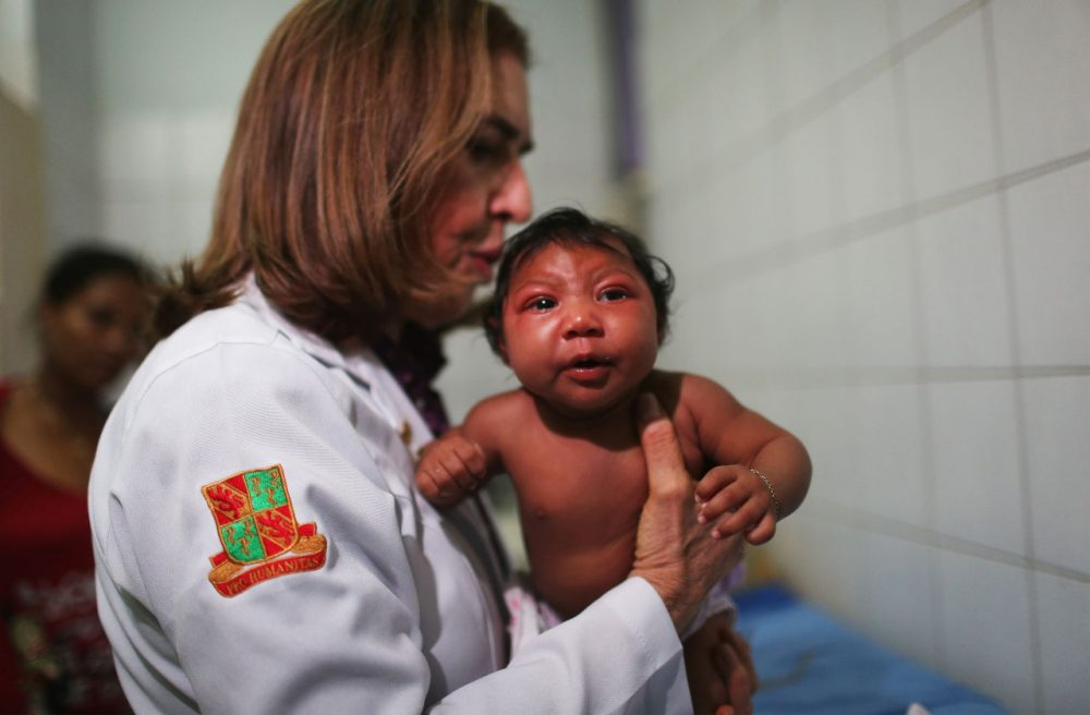 Dr. Angela Rocha, a pediatric infectologist at Oswaldo Cruz Hospital, examines Ludmilla Hadassa Dias de Vasconcelos (2 months), who has microcephaly, on January 26, 2016 in Recife, Brazil. In the last four months, authorities have recorded close to 4,000 cases in Brazil in which the mosquito-borne Zika virus may have led to microcephaly in infants. The ailment results in an abnormally small head in newborns and is associated with various disorders including decreased brain development. According to the World Health Organization (WHO), the Zika virus outbreak is likely to spread throughout nearly all the Americas. At least 12 cases in the United States have now been confirmed by the CDC. Brazil reported the first cases in the Americas of local transmissions of the virus last year. (Mario Tama/Getty Images)