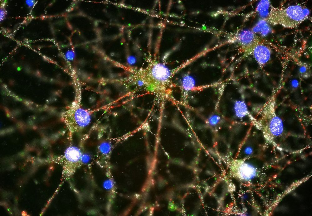 Image made with a fluorescent microscope shows C4 proteins, green, located at the synapses in a culture of human neurons. In research released Wednesday, scientists pursuing the biological roots of schizophrenia have zeroed in on a potential factor. (Heather de Rivera/McCarroll Lab/Harvard/AP)