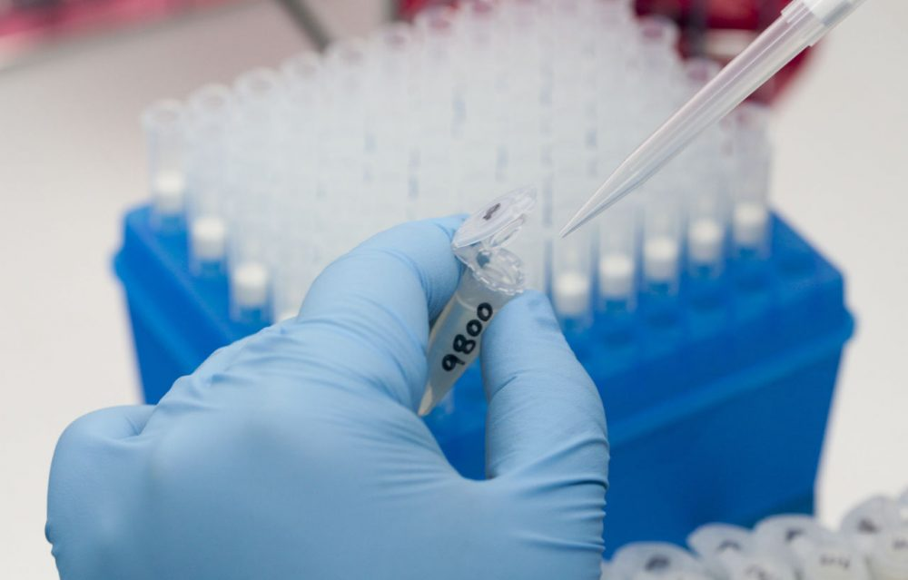 A medical researcher works on results of tests for various diseases, including Zika, at the Gorgas Memorial laboratory Panama City, Friday, Feb. 5, 2016. Panamanian authorities announced Monday that 50 cases of the Zika virus infection have been detected in Panama's sparsely populated Guna Yala indigenous area along the Caribbean coast where they are conducting an aggressive campaign to contain the spread of the virus. (Arnulfo Franco/AP)