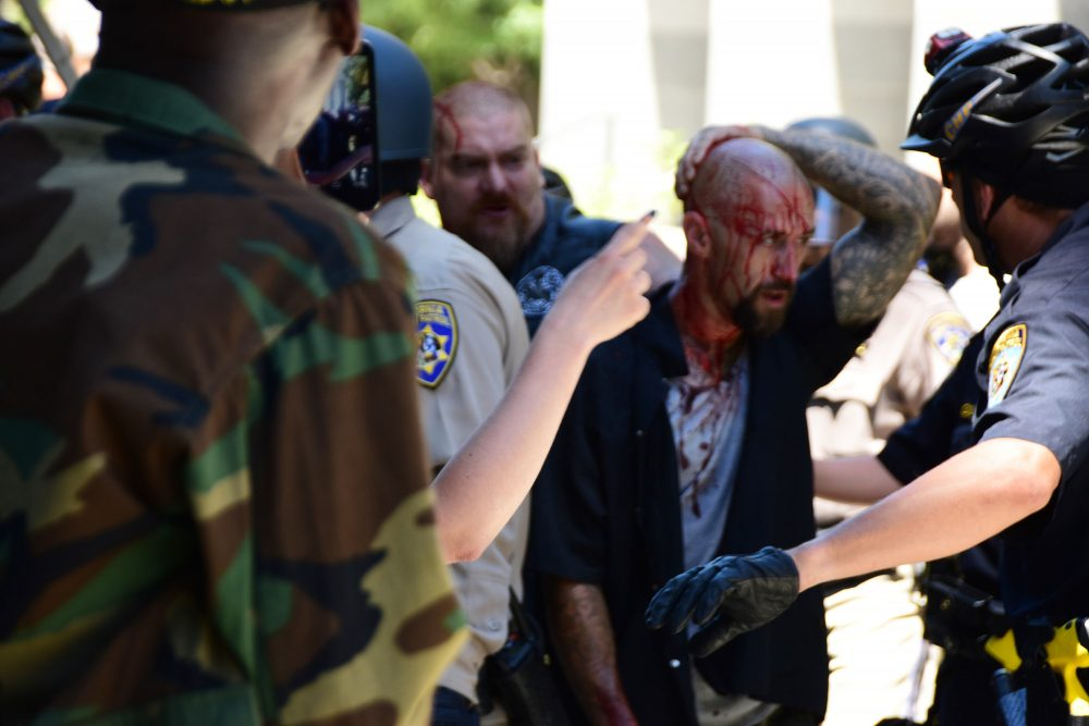 Police escort wounded man away from in front of the Capitol in Scramento, Sunday, June 26, 2016, after members of right-wing extremists groups holding a rally outside the California state Capitol building clashed with counter-protesters, authorities said. Sacramento Police spokesman Matt McPhail said the Traditionalist Workers Party had scheduled and received a permit to protest at noon Sunday in front of the Capitol. McPhail said a group showed up to demonstrate against them. (Steven Styles/AP)