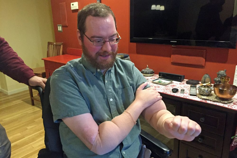 Will Lautzenheiser shows his transplanted arms during a visit with Here & Now's Robin Young. (Robin Young/Here & Now)
