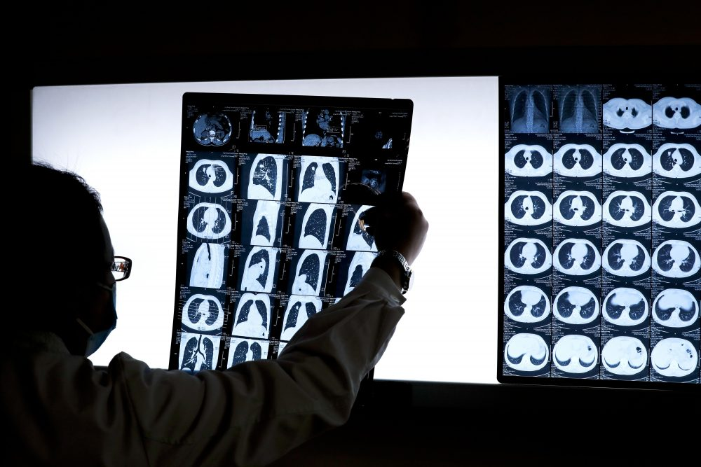 In this 2016 photo, a Chinese doctor Peng Limei looks at a CT scan of a lung cancer patient. (Andy Wong/AP)