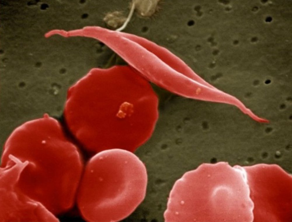 "A ""sickled"" cell is seen among normal red blood cells. (Wikimedia Commons)"
