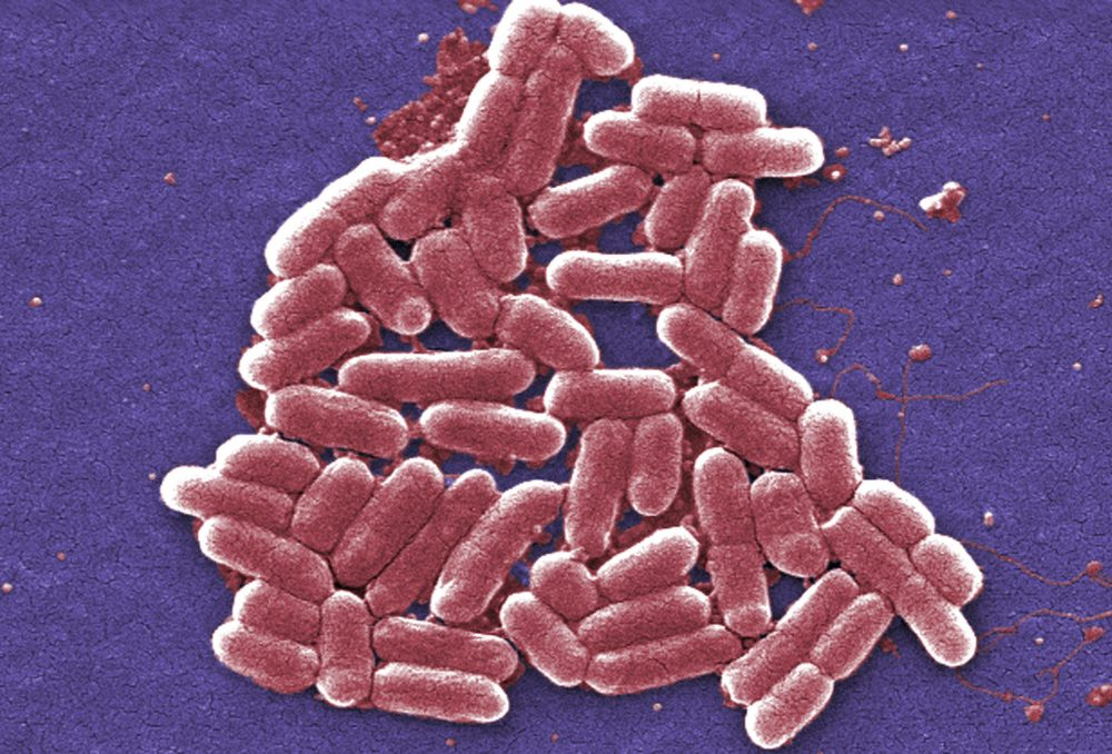 A colorized image of the O157:H7 strain of the E. coli bacteria, which can be resistant to colistin, often considered the last option in antibiotics. (Janice Carr/CDC via AP)