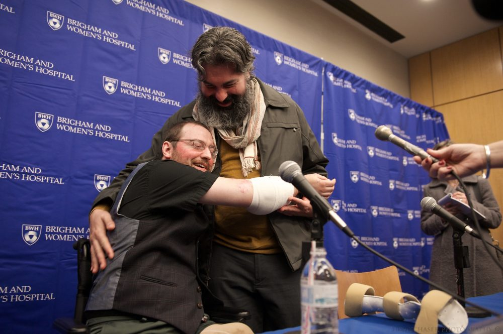 On Nov. 25, 2014, Brigham and Women's Hospital with the New England Organ Bank announced Will Lautzenheiser's double arm transplant. (Courtesy lightchaser photography)