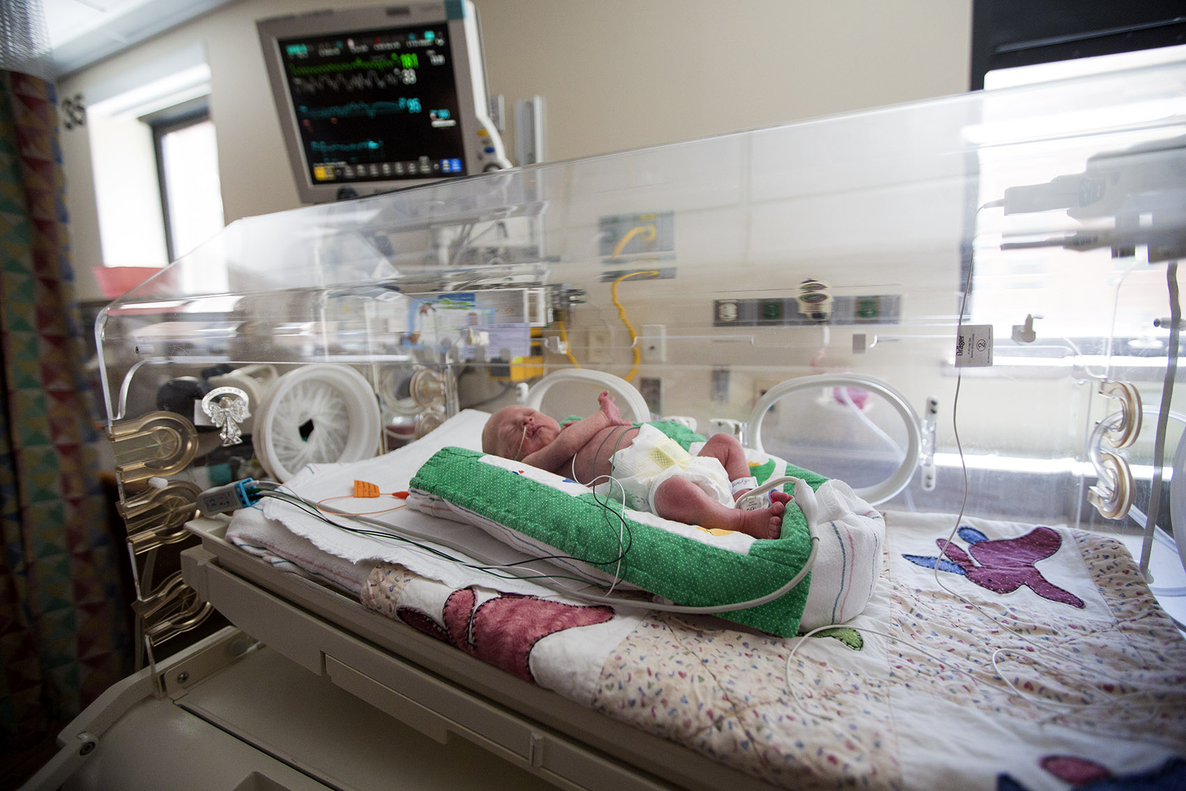 A baby rests in the Neonatal Intensive Care Unit at Tufts Medical Center after being born more than 11 weeks premature. (Jesse Costa/WBUR)
