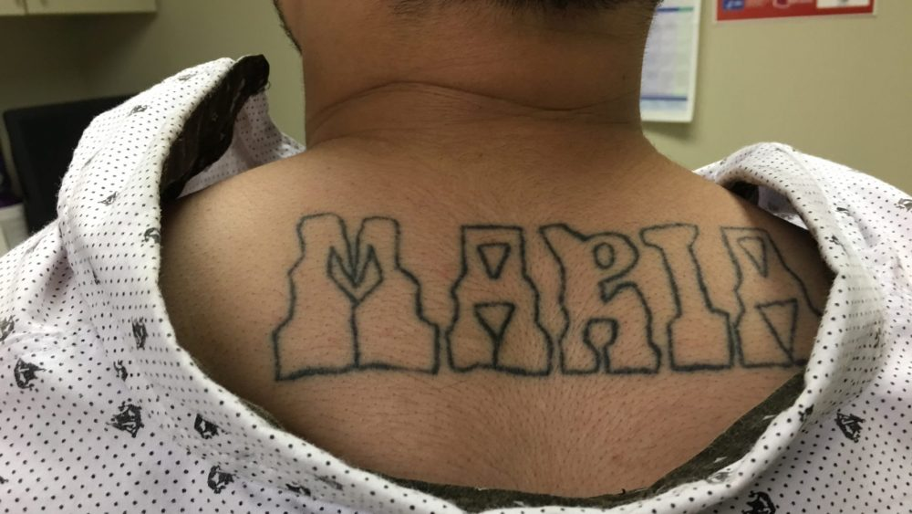 Former gang member Juan says he wants his tattoos gone because he wants to live a normal life and forget his past. (Armando Trull/WAMU)